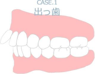Case.1 出っ歯