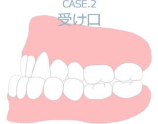 Case.2 受け口