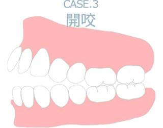 Case.3 開咬