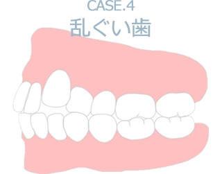 Case.4 乱ぐい歯