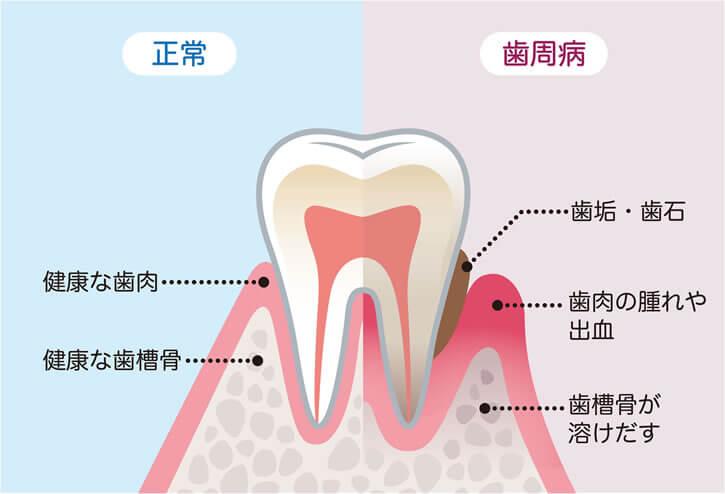 正常の歯と歯周病の歯